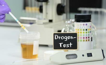Drogentest Polizei | Die Probe und die ärztliche Untersuchung