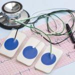 Polizei Einstellungstest: EKG - Polizeiärztliche Untersuchung