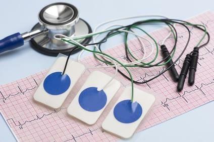 Polizei Einstellungstest: EKG – Polizeiärztliche Untersuchung
